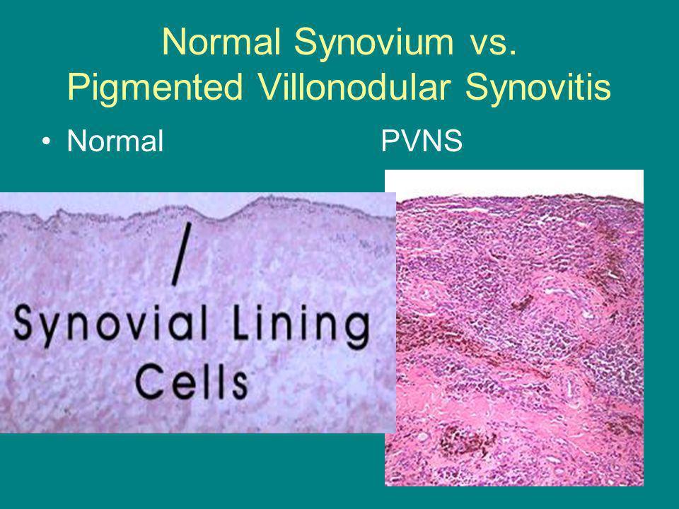 Normal Synovium vs. Pigmented Villonodular Synovitis NormalPVNS