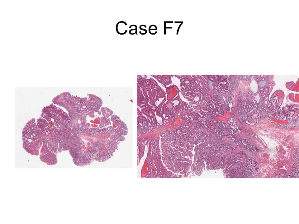 Case F7