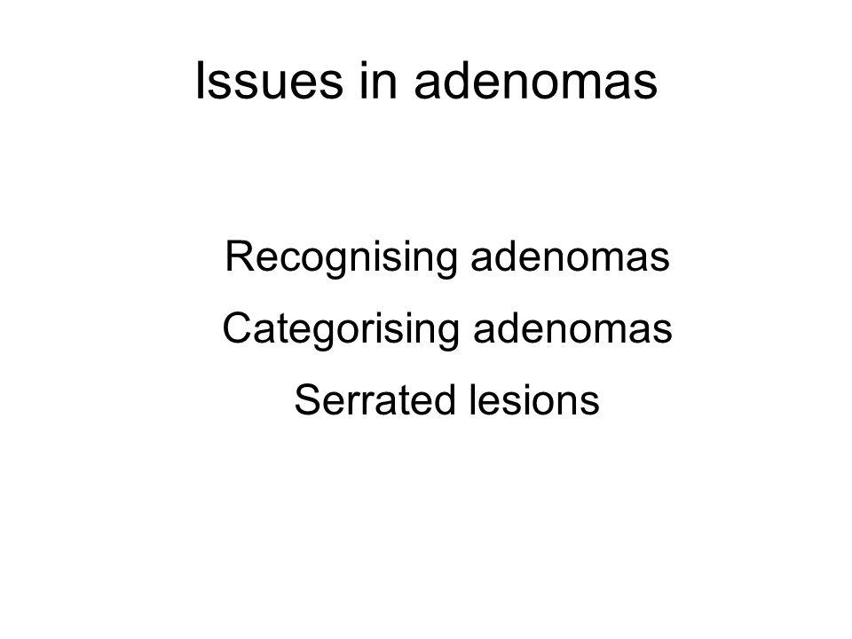 Issues in adenomas Recognising adenomas Categorising adenomas Serrated lesions