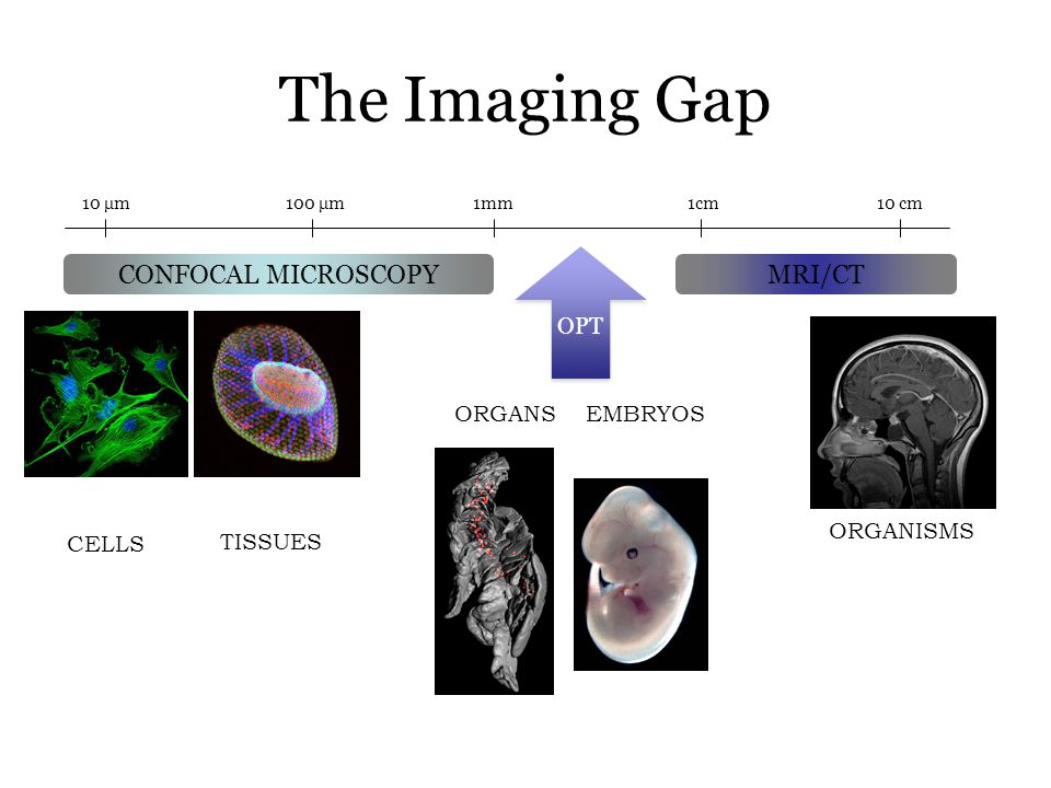 The Imaging Gap 100 μm1mm1cm10 cm10 μm CONFOCAL MICROSCOPYMRI/CT OPT CELLS TISSUES ORGANISMS EMBRYOSORGANS