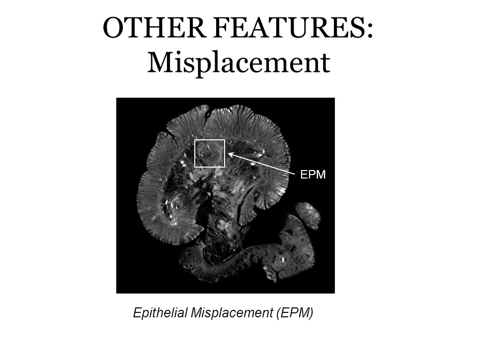 OTHER FEATURES: Misplacement EPM Epithelial Misplacement (EPM)