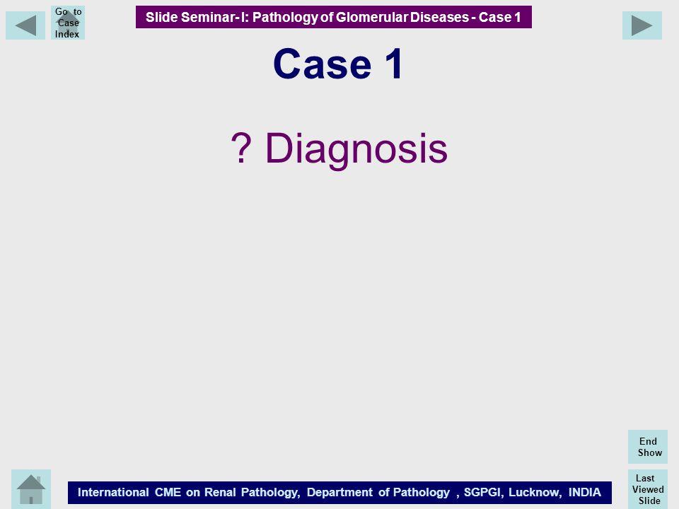 Last Viewed Slide International CME on Renal Pathology, Department of Pathology, SGPGI, Lucknow, INDIA End Show Go to Case Index Case 1 ? Diagnosis Sl