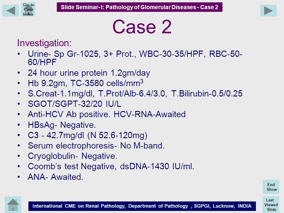 Last Viewed Slide International CME on Renal Pathology, Department of Pathology, SGPGI, Lucknow, INDIA End Show Go to Case Index Case 2 Investigation: