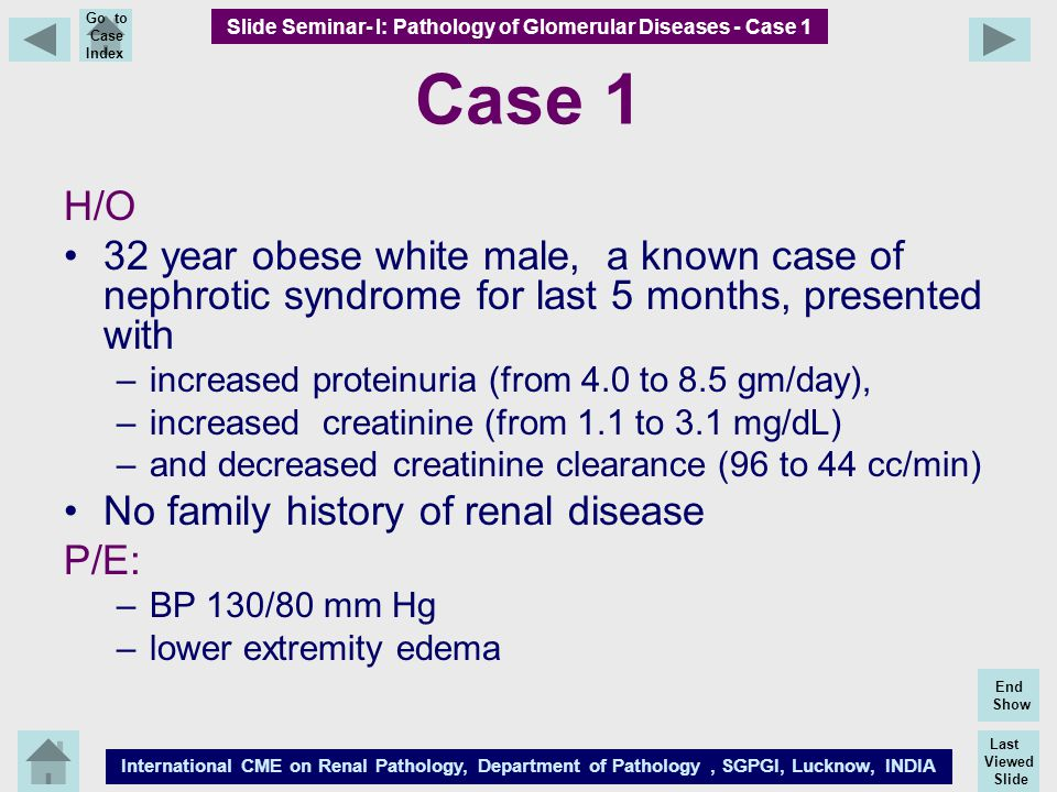Last Viewed Slide International CME on Renal Pathology, Department of Pathology, SGPGI, Lucknow, INDIA End Show Go to Case Index Case 1 H/O 32 year ob
