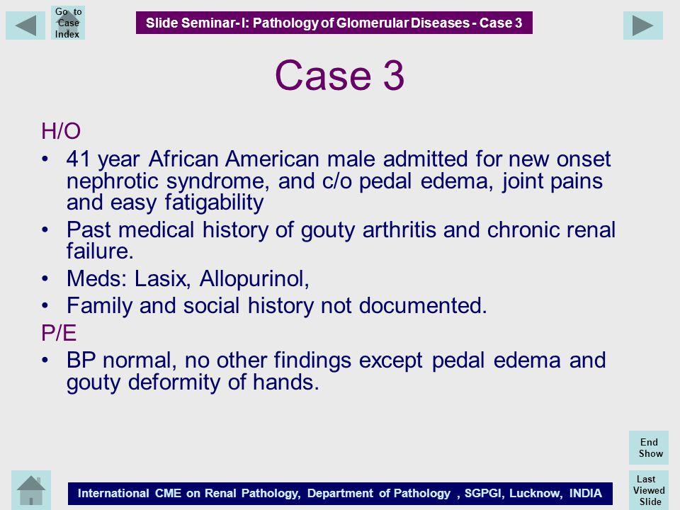 Last Viewed Slide International CME on Renal Pathology, Department of Pathology, SGPGI, Lucknow, INDIA End Show Go to Case Index Case 3 H/O 41 year Af