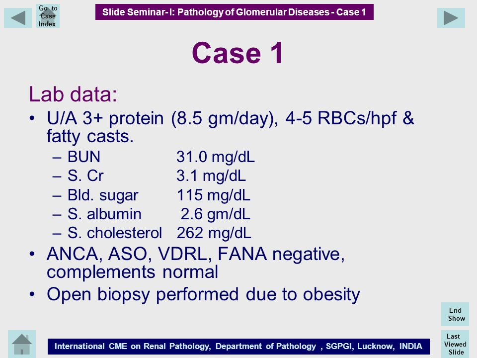Last Viewed Slide International CME on Renal Pathology, Department of Pathology, SGPGI, Lucknow, INDIA End Show Go to Case Index Case 1 Lab data: U/A