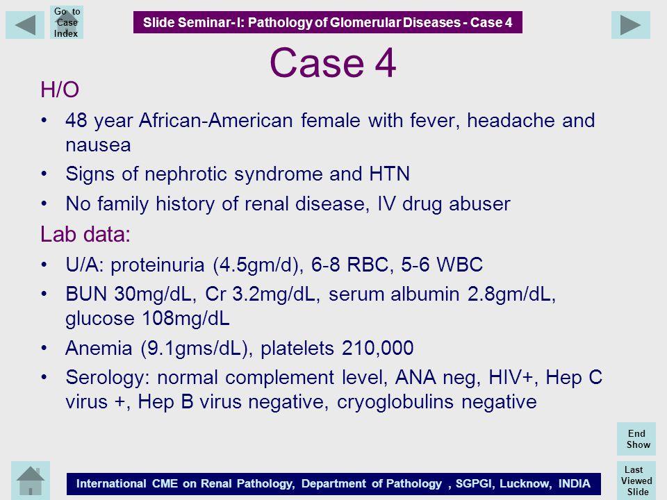 Last Viewed Slide International CME on Renal Pathology, Department of Pathology, SGPGI, Lucknow, INDIA End Show Go to Case Index Case 4 H/O 48 year Af