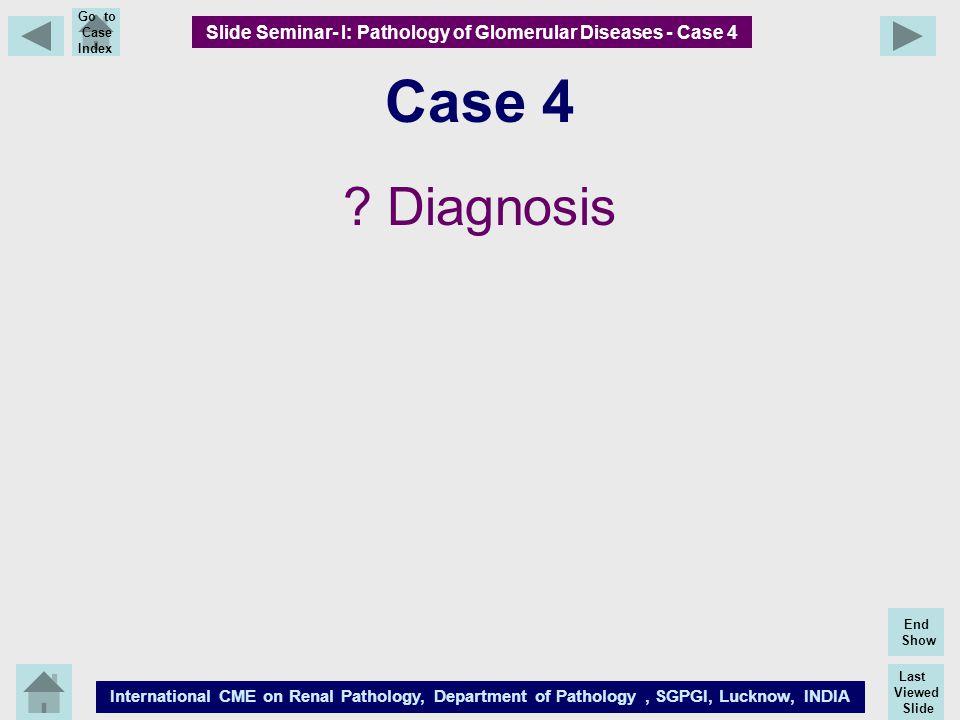 Last Viewed Slide International CME on Renal Pathology, Department of Pathology, SGPGI, Lucknow, INDIA End Show Go to Case Index Case 4 ? Diagnosis Sl