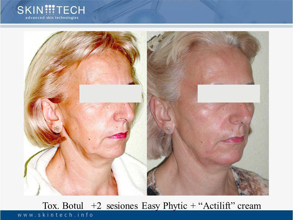 6 sessions Easy Phytic + bleaching blending Skin Tech cream