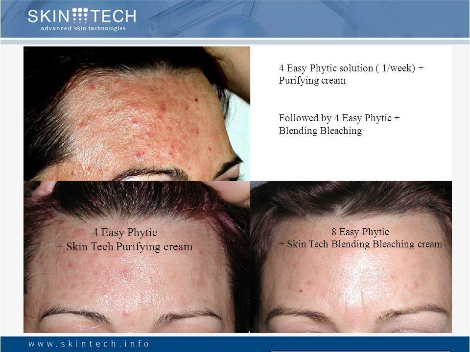 3 Easy Phytic + SKIN TECH Purifying cream After what we should treat the PIH with the blending bleaching cream