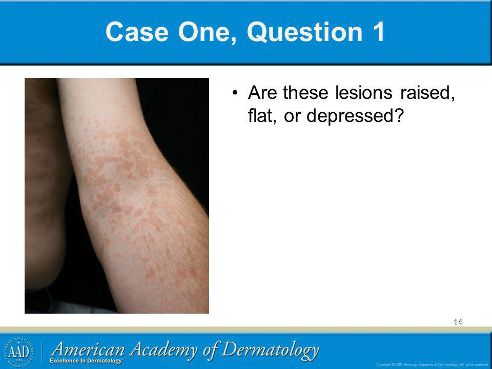 Case One, Question 1 Are these lesions raised, flat, or depressed? 14