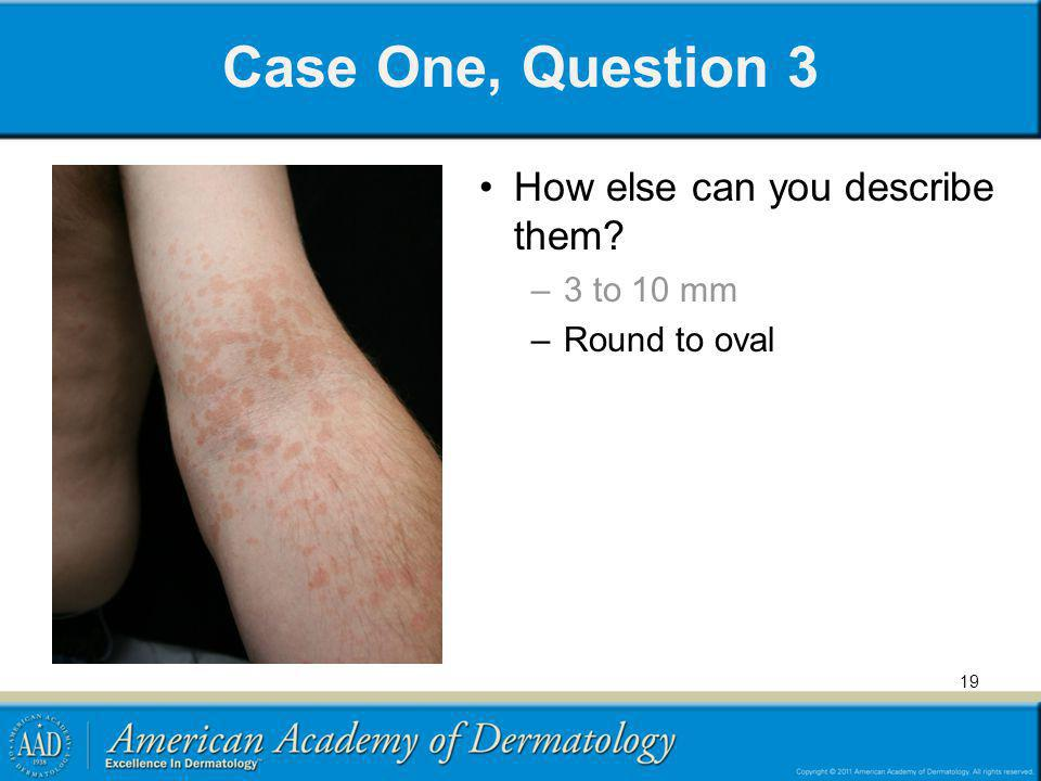 Case One, Question 3 How else can you describe them? –3 to 10 mm –Round to oval 19