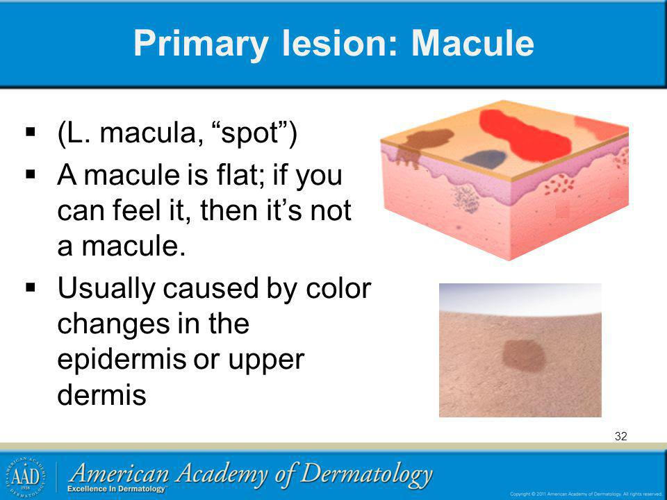 Primary lesion: Macule (L. macula, spot) A macule is flat; if you can feel it, then its not a macule. Usually caused by color changes in the epidermis