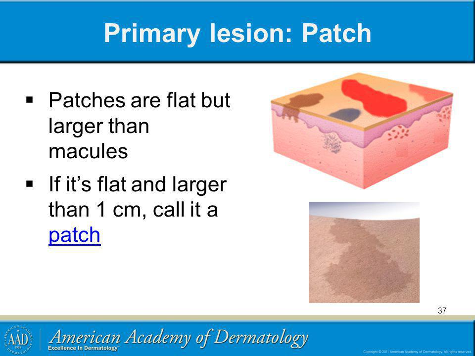 Primary lesion: Patch Patches are flat but larger than macules If its flat and larger than 1 cm, call it a patch patch 37
