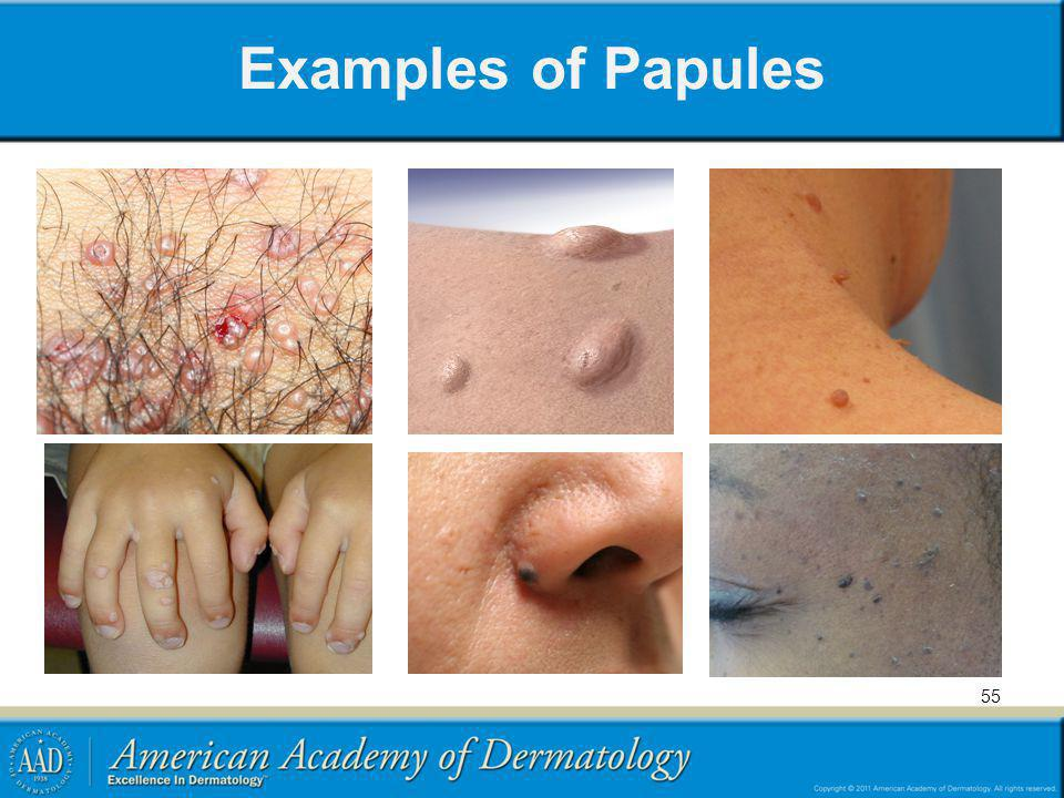 Examples of Papules 55