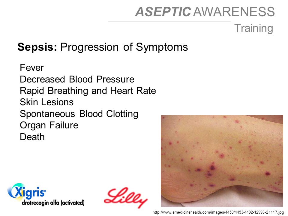 ASEPTIC AWARENESS Training Sepsis: Progression of Symptoms Fever Decreased Blood Pressure Rapid Breathing and Heart Rate Skin Lesions Spontaneous Blood Clotting Organ Failure Death http://www.emedicinehealth.com/images/4453/4453-4482-12996-21147.jpg