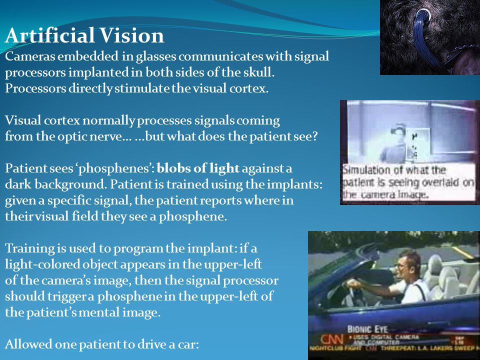 Artificial Vision Cameras embedded in glasses communicates with signal processors implanted in both sides of the skull. Processors directly stimulate
