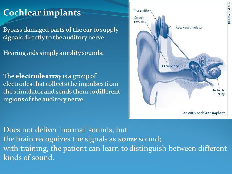 Cochlear implants Bypass damaged parts of the ear to supply signals directly to the auditory nerve. Hearing aids simply amplify sounds. The electrode