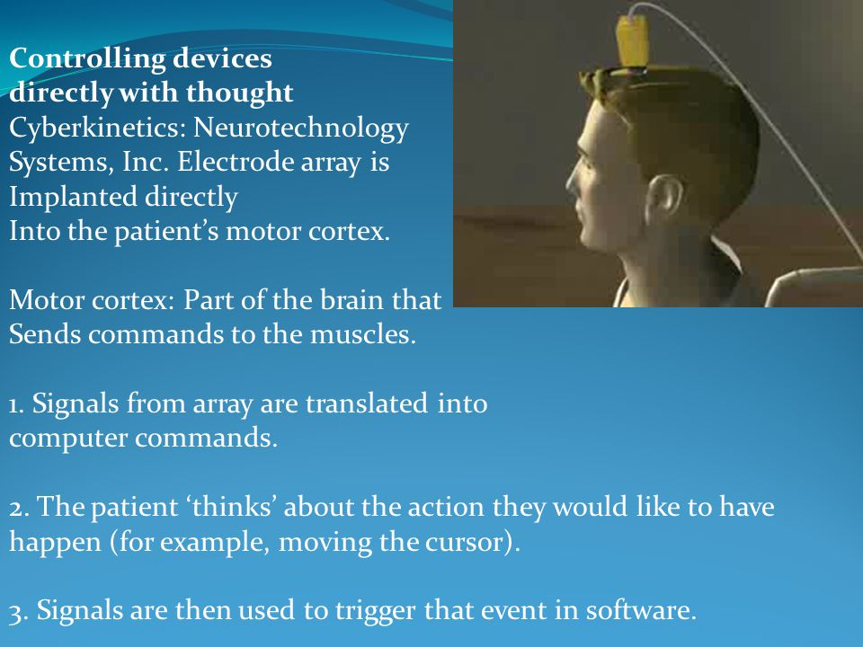 Controlling devices directly with thought Cyberkinetics: Neurotechnology Systems, Inc. Electrode array is Implanted directly Into the patients motor c