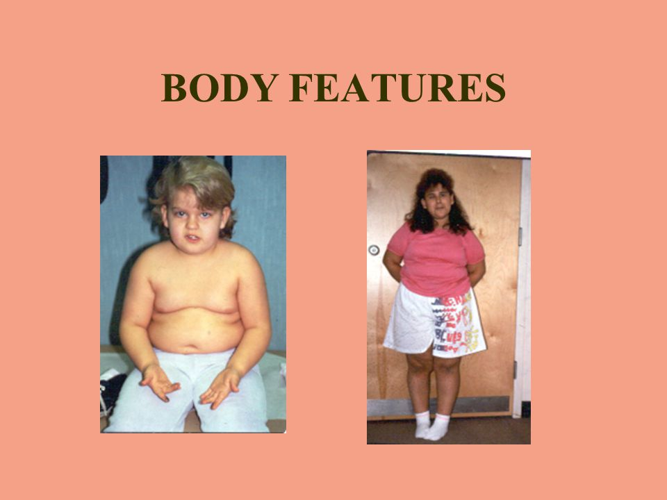 BODY FEATURES