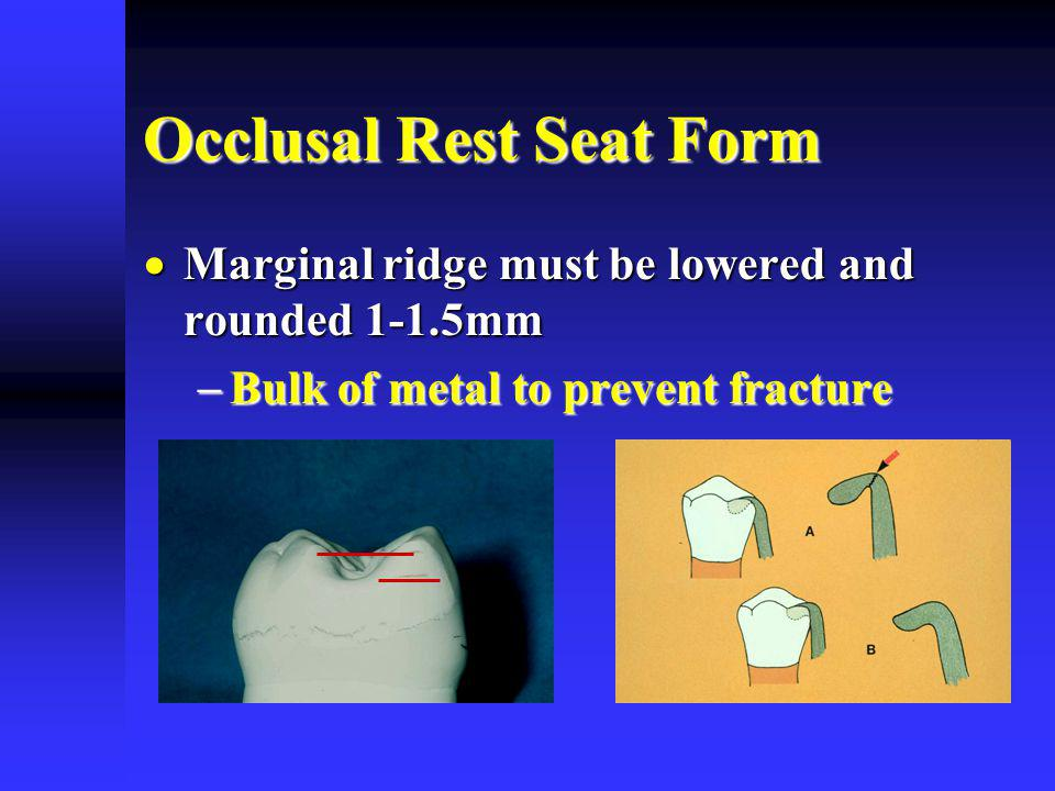 Occlusal Rest Seat Form Marginal ridge must be lowered and rounded 1-1.5mm Marginal ridge must be lowered and rounded 1-1.5mm Bulk of metal to prevent fracture Bulk of metal to prevent fracture