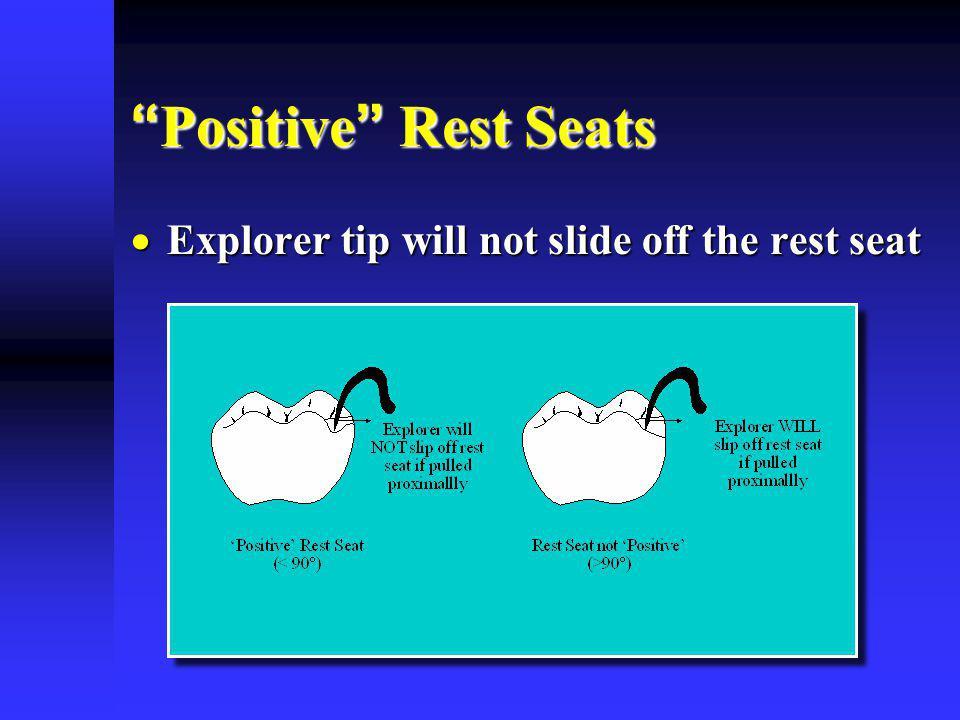 Positive Rest Seats Positive Rest Seats Explorer tip will not slide off the rest seat Explorer tip will not slide off the rest seat