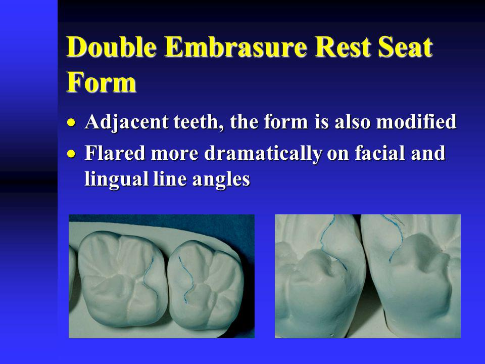 Double Embrasure Rest Seat Form Adjacent teeth, the form is also modified Adjacent teeth, the form is also modified Flared more dramatically on facial and lingual line angles Flared more dramatically on facial and lingual line angles