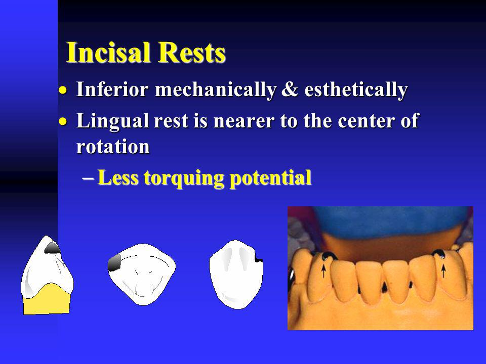Incisal Rests Inferior mechanically & esthetically Inferior mechanically & esthetically Lingual rest is nearer to the center of rotation Lingual rest is nearer to the center of rotation Less torquing potential Less torquing potential
