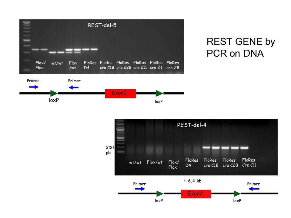 REST GENE by PCR on DNA