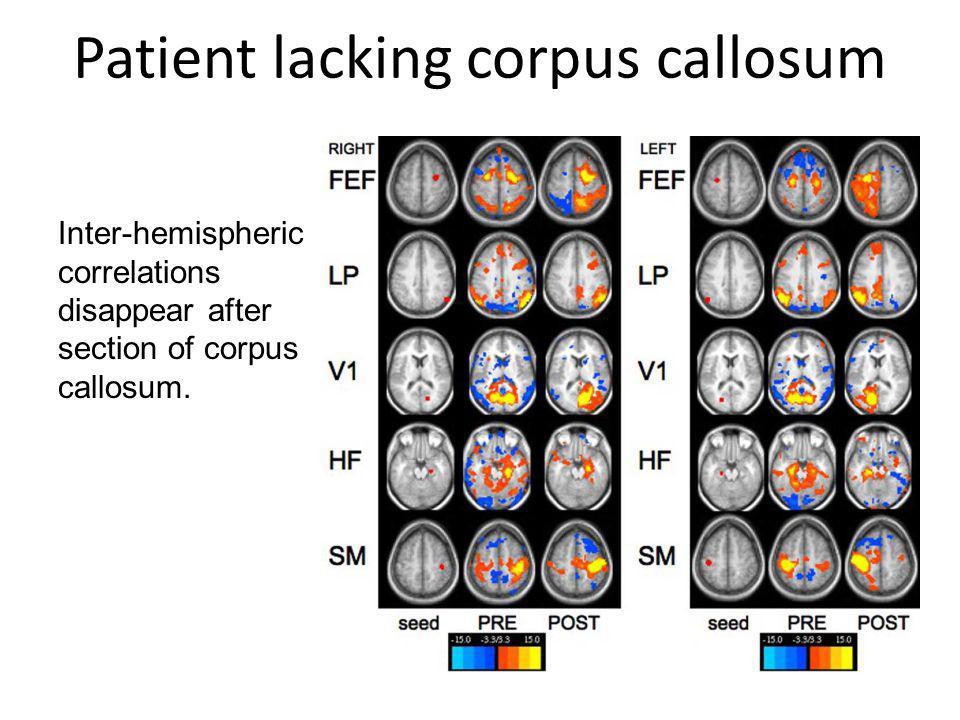 Patient lacking corpus callosum Inter-hemispheric correlations disappear after section of corpus callosum.