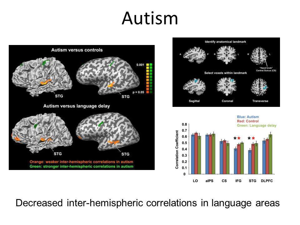 Autism Decreased inter-hemispheric correlations in language areas