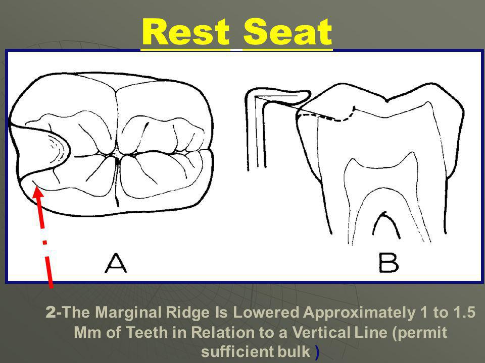 Forms and Requirements of Rest Seat Preparation 1- Should Be Rounded Triangular in Shape the Base of the Triangle at the Marginal Ridge About 2.5 mm i