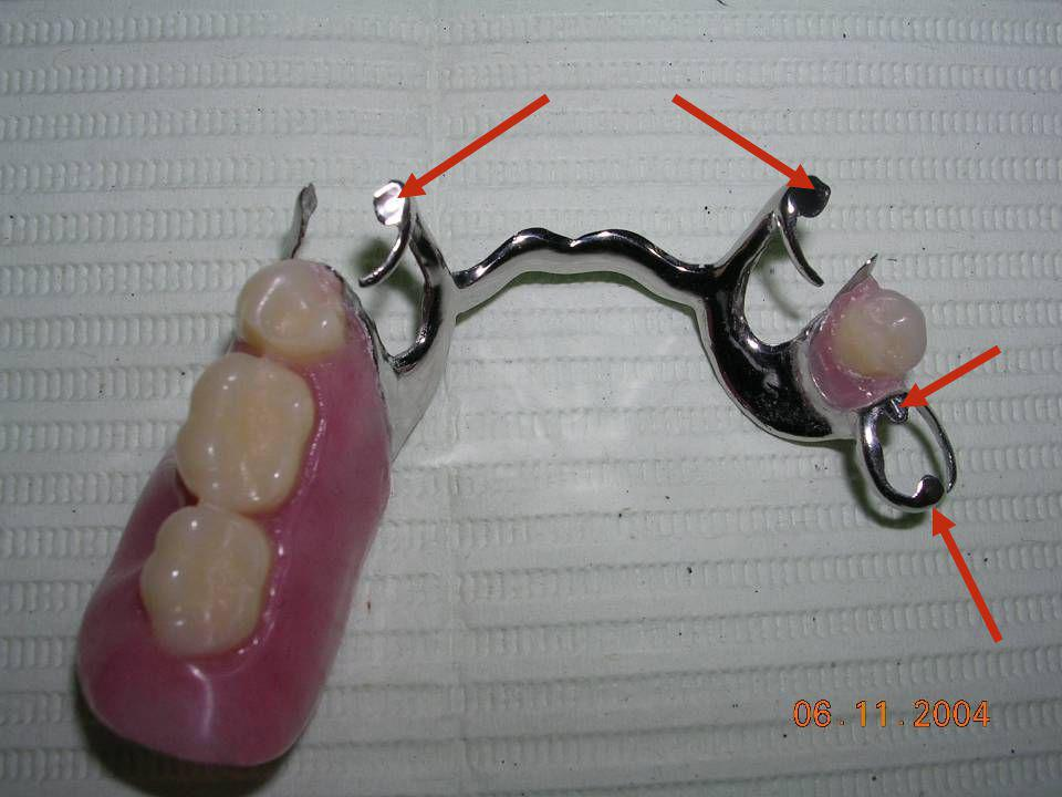 Denture Base Artificial Teeth Supporting Rests Retainers Direct retainers Indirect Retainers Connectors : Major Connectors Minor Connectors The Compon