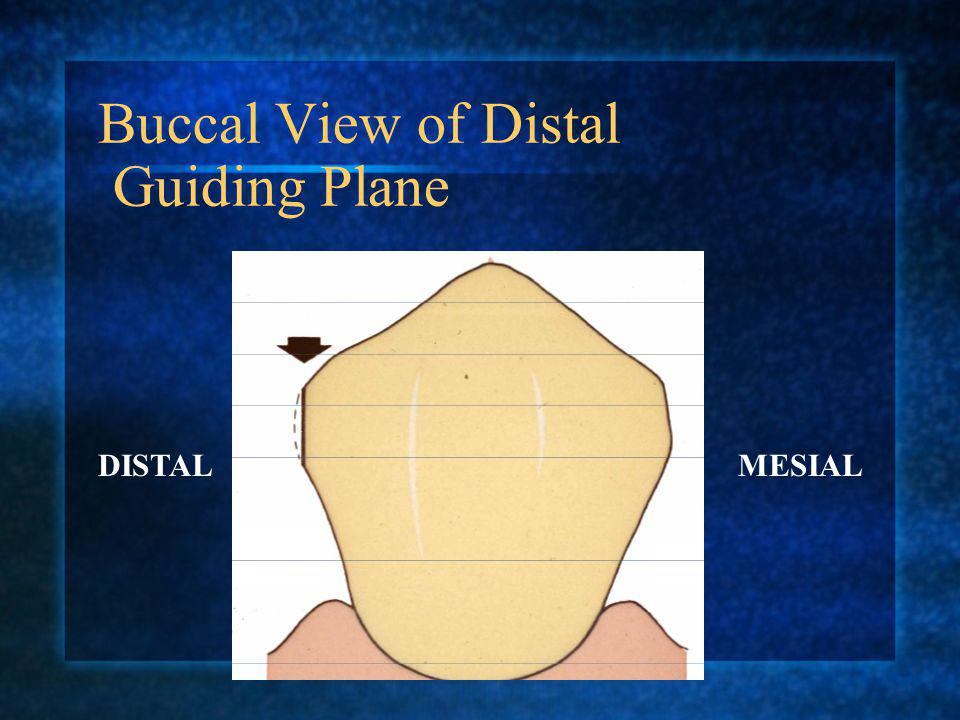 LINGUAL VIEW OF DISTAL & LINGUAL GUIDING PLANES. MESIALDISTAL