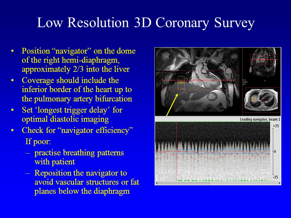 Low Resolution 3D Coronary Survey Position navigator on the dome of the right hemi-diaphragm, approximately 2/3 into the liver Coverage should include