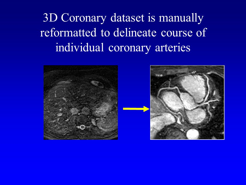 3D Coronary dataset is manually reformatted to delineate course of individual coronary arteries