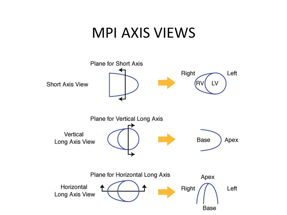 MPI AXIS VIEWS