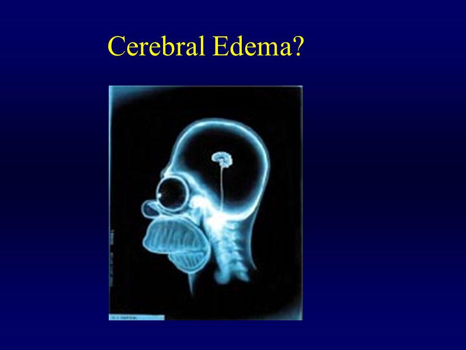 Cerebral Edema?