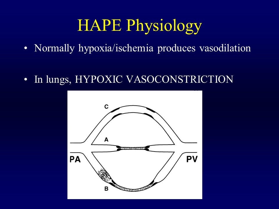 HAPE Physiology Normally hypoxia/ischemia produces vasodilation In lungs, HYPOXIC VASOCONSTRICTION