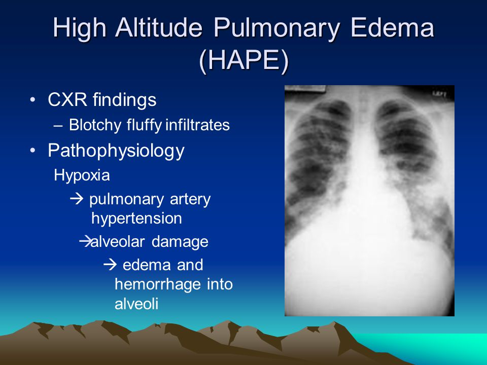 High Altitude Pulmonary Edema (HAPE) CXR findings –Blotchy fluffy infiltrates Pathophysiology Hypoxia pulmonary artery hypertension alveolar damage edema and hemorrhage into alveoli
