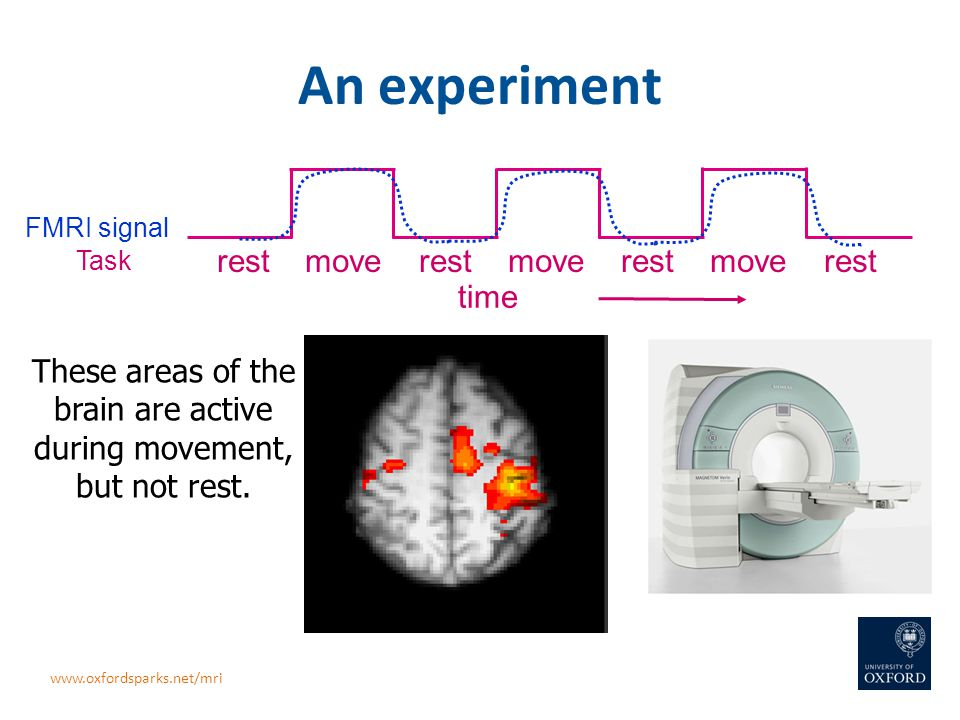 An experiment rest move rest move rest move rest Task FMRI signal time These areas of the brain are active during movement, but not rest. www.oxfordsp