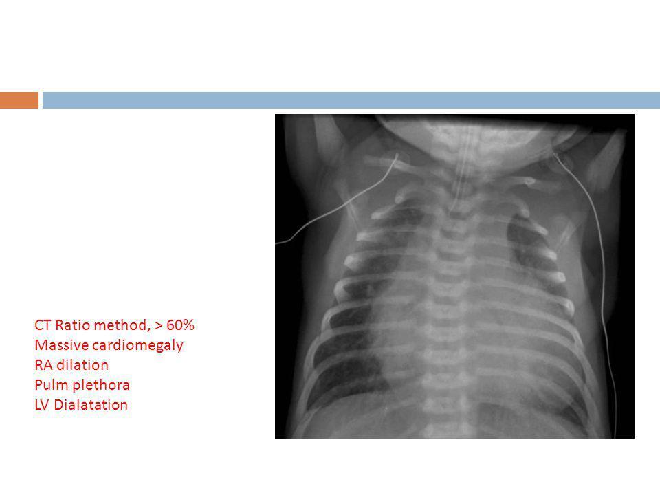 CT Ratio method, > 60% Massive cardiomegaly RA dilation Pulm plethora LV Dialatation