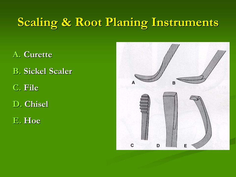Scaling & Root Planing Instruments A. Curette B. Sickel Scaler C. File D. Chisel E. Hoe