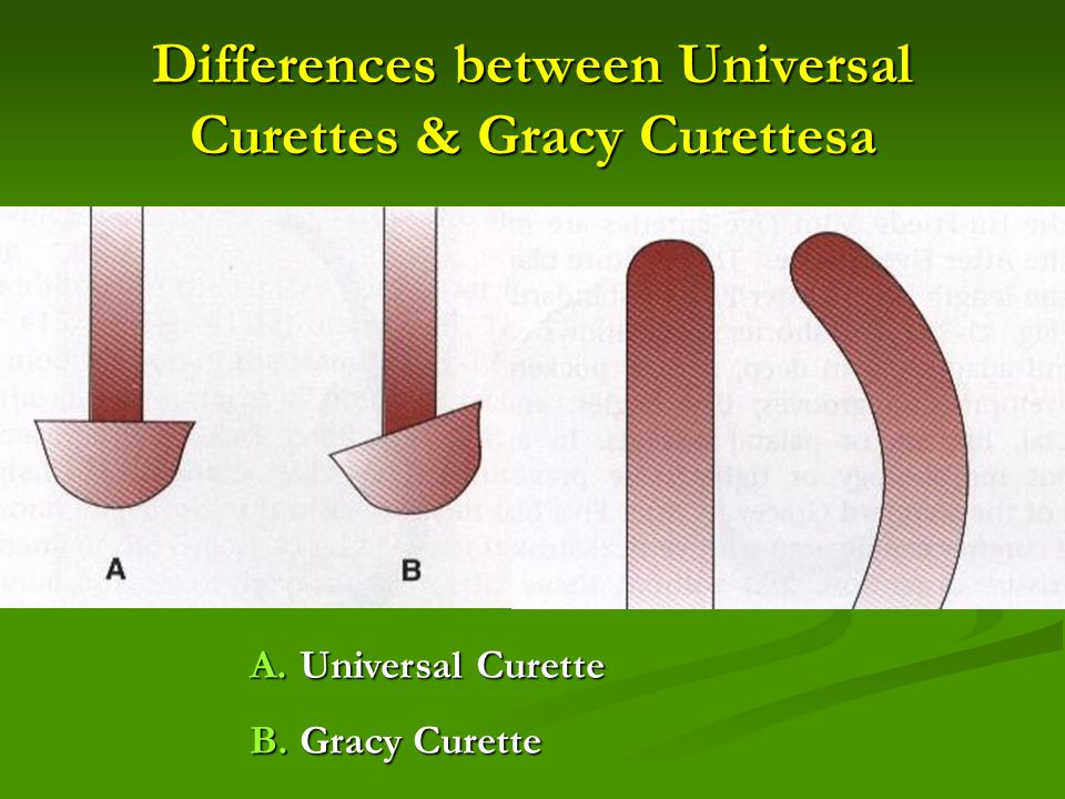 Differences between Universal Curettes & Gracy Curettesa A. Universal Curette B. Gracy Curette