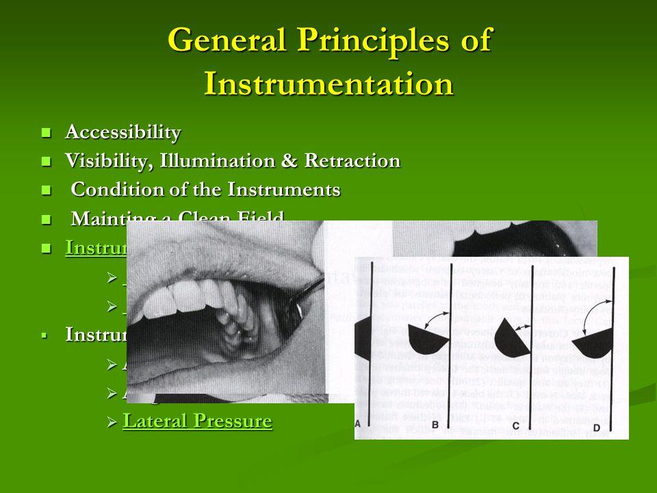General Principles of Instrumentation Accessibility Accessibility Visibility, Illumination & Retraction Visibility, Illumination & Retraction Conditio