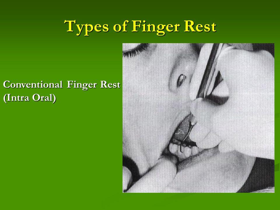 Types of Finger Rest Conventional Finger Rest (Intra Oral)