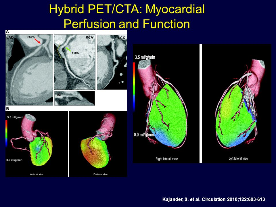 Schenker, M. P. et al. Circulation 2008;117:1693-1700 Prognosis of Cardiac Events by PET-CT Added Value of CAC