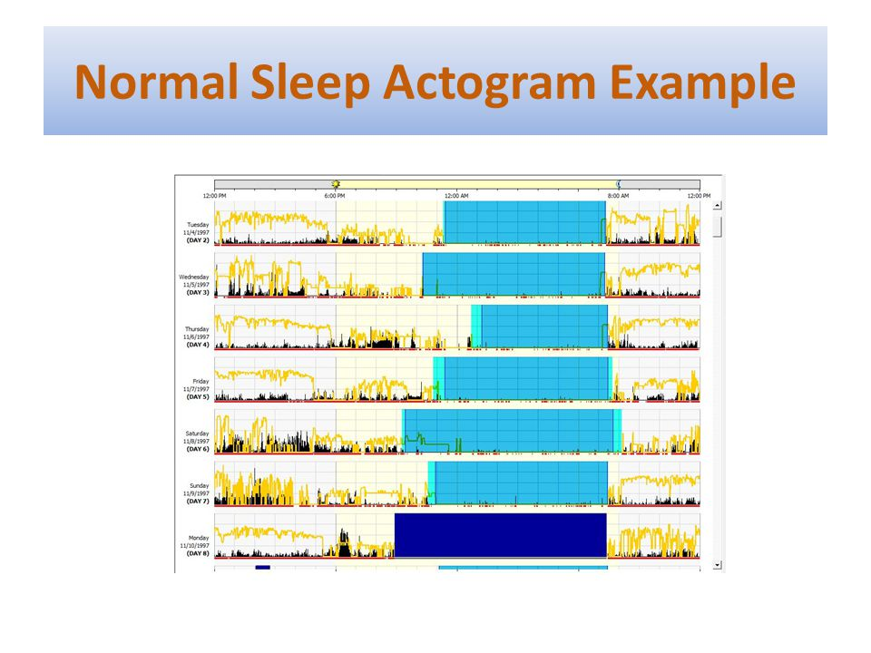Normal Sleep Actogram Example