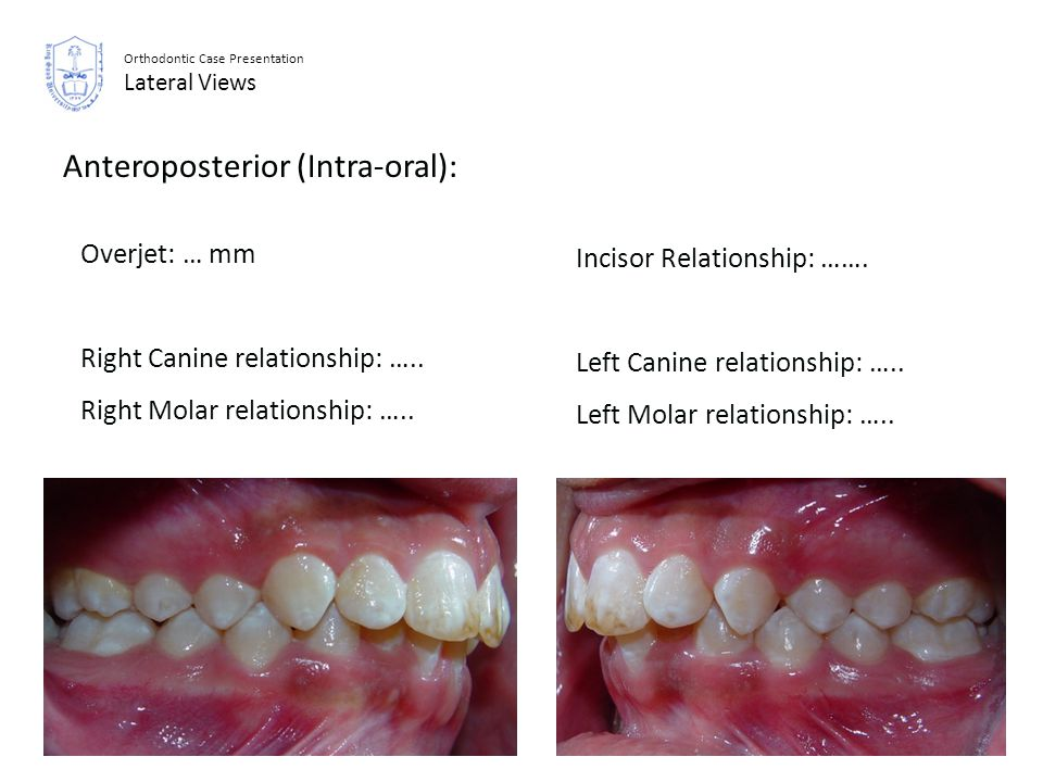 Orthodontic Case Presentation Lateral Views Anteroposterior (Intra-oral): Incisor Relationship: ……. Left Canine relationship: ….. Left Molar relations