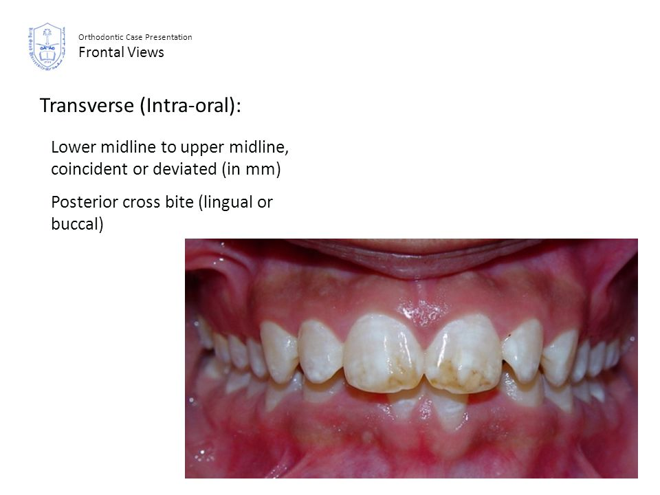 Orthodontic Case Presentation Frontal Views Transverse (Intra-oral): Lower midline to upper midline, coincident or deviated (in mm) Posterior cross bi